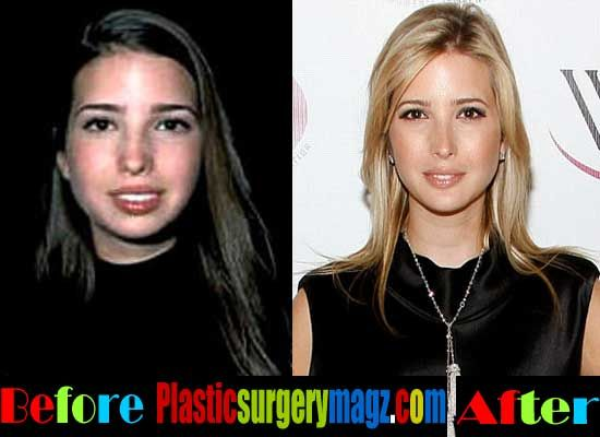 Plastic Surgery Magazine Ivanka Trump Plastic Surgery Before And After Http Plasticsurgerymagz Com Plastic Surgery Celebrity Plastic Surgery Surgery