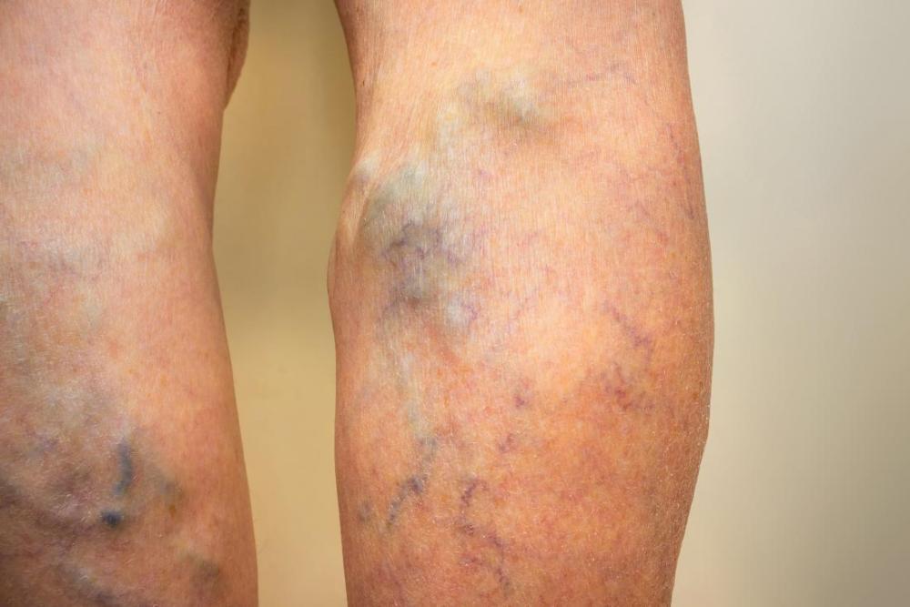 ierburi de la picior de varicoză