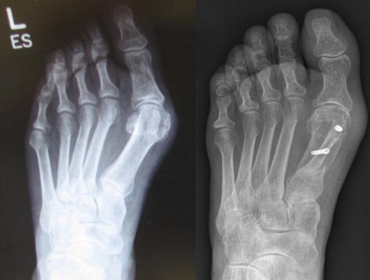 Cosmetic Foot Surgery | Foot surgery, Cosmetic foot ...