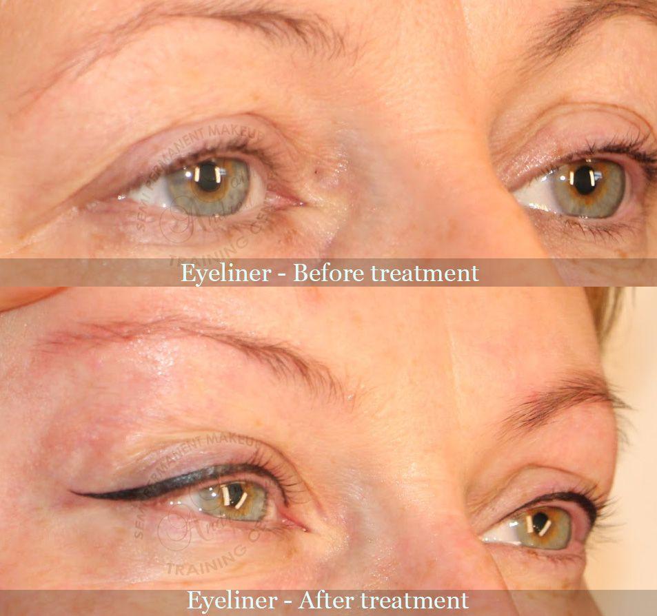 Permanent Makeup Eyeliner Before After Make Up In 2019 Eye