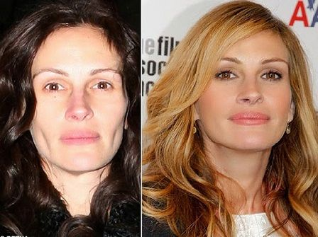 Julia Roberts Face Plastic Surgery Before and After ...