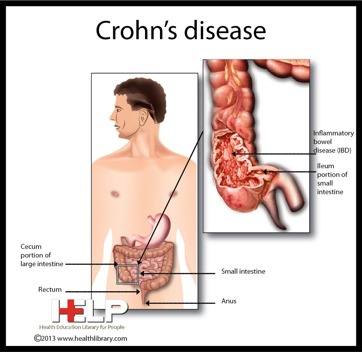 Crohns Disease and Mind-Body Medicine