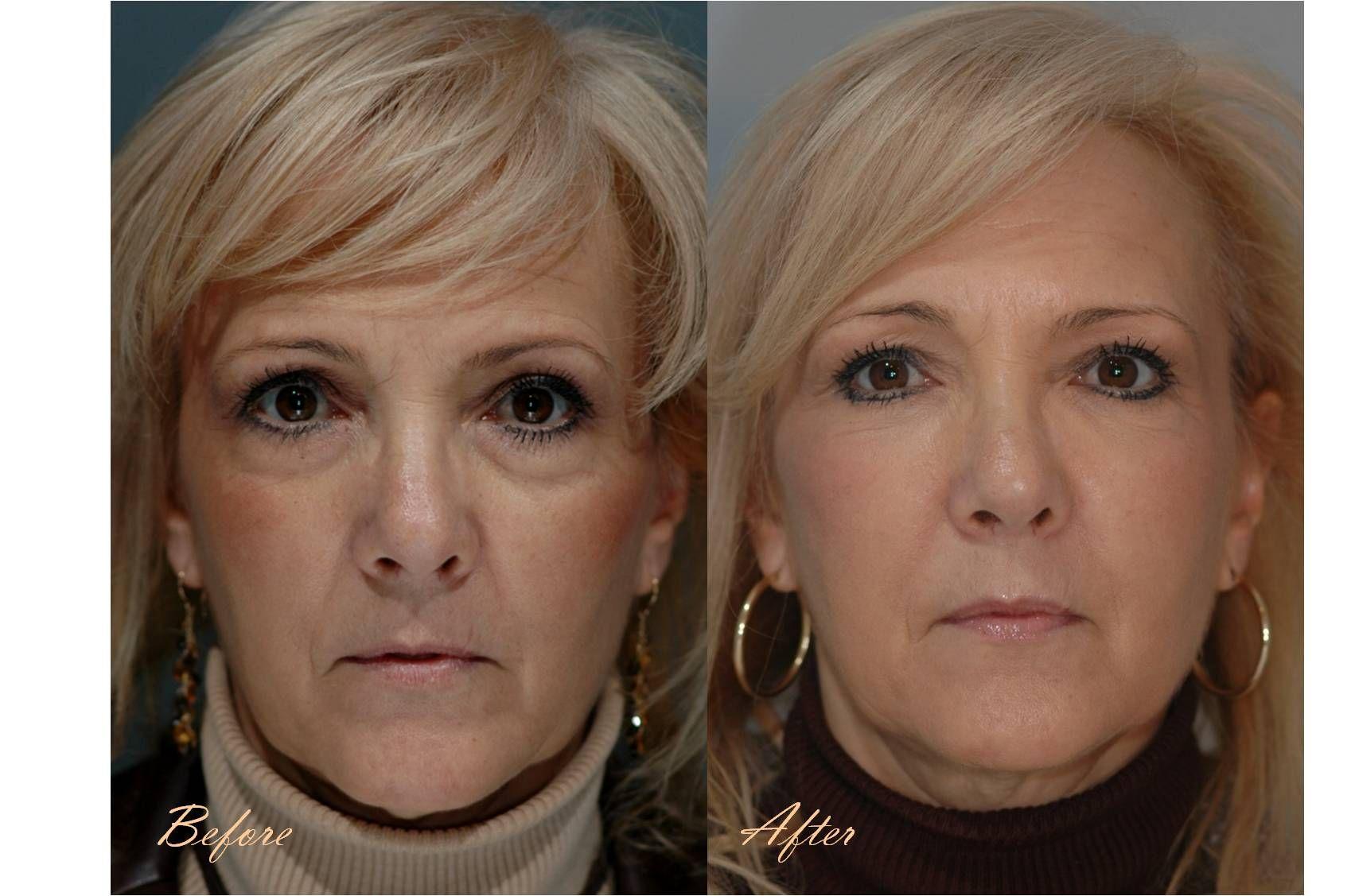 Celebrity Blepharoplasty Before And After   www.imgkid.com ...
