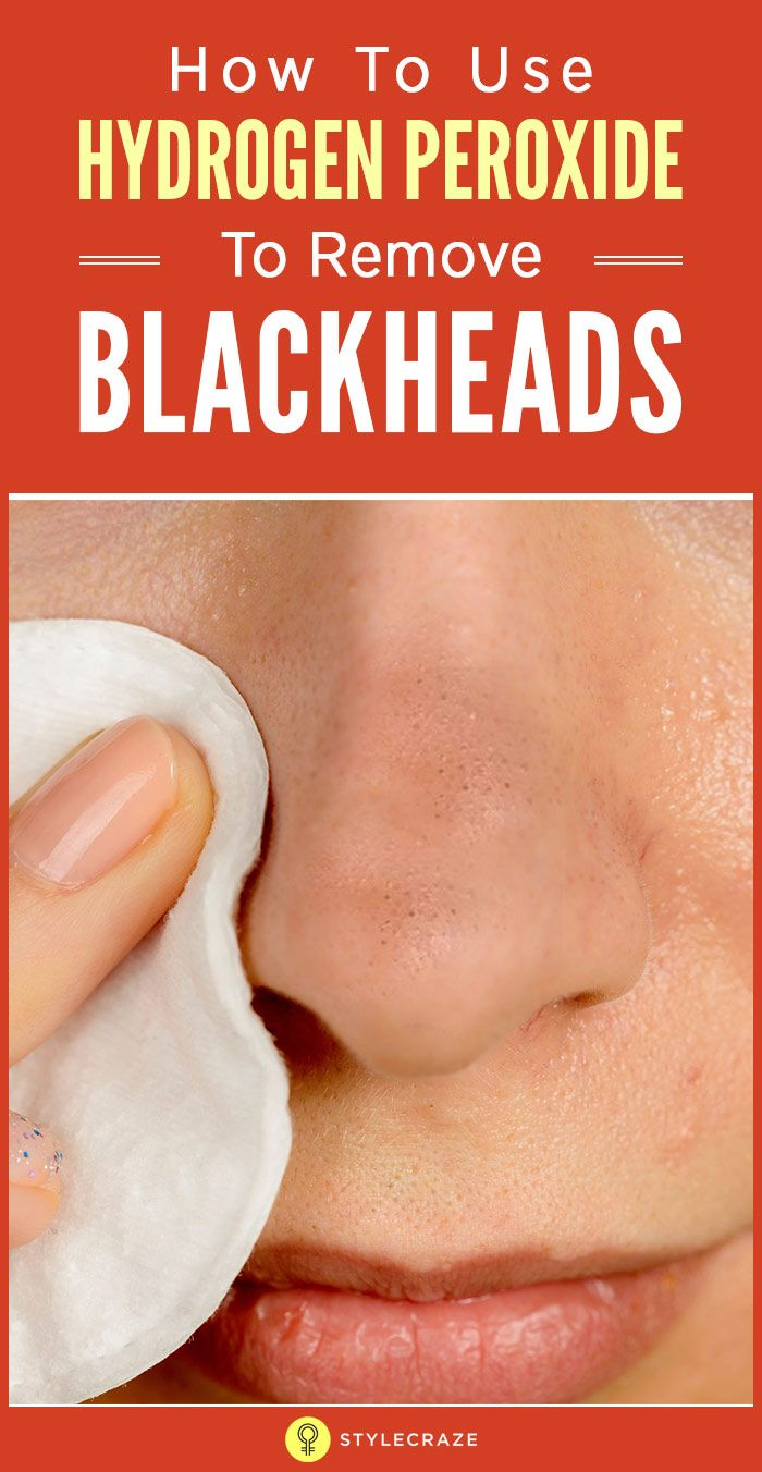 How To Use Hydrogen Peroxide To Remove Blackheads  DIY  Pinterest