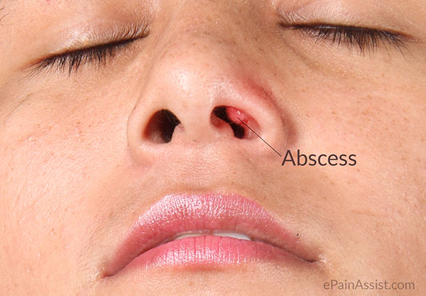 Get info about Pimple in Nose: How to Get Rid of It  Look at here