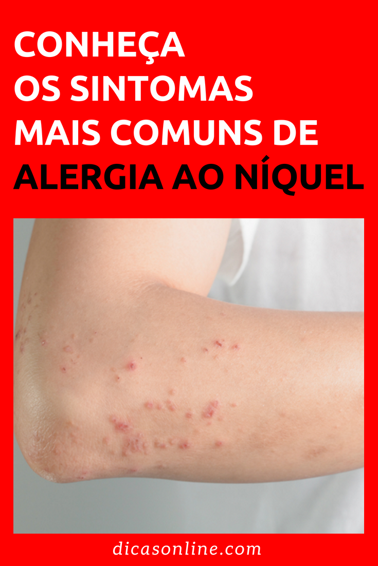 Voce Pode Ter Alergia A Esse Metal E Nao Saber Salud Alergias Bucal