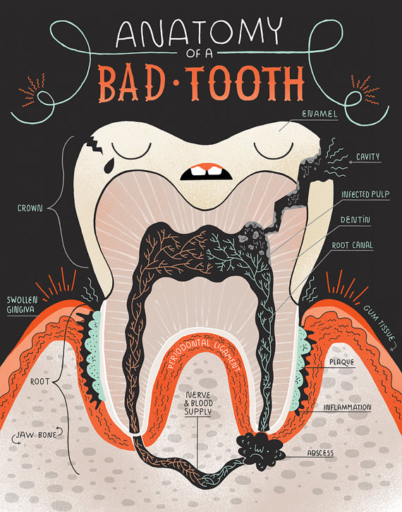 Anatomy of a Good Tooth and Bad Tooth: Two Art print Set | Pinterest ...