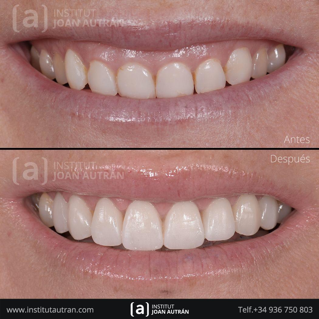 Pin De Institut Joan Autrán Estétic En Carillas Dentales Top Smile Carillas Dentales Estetica Dental Cuidado Dental