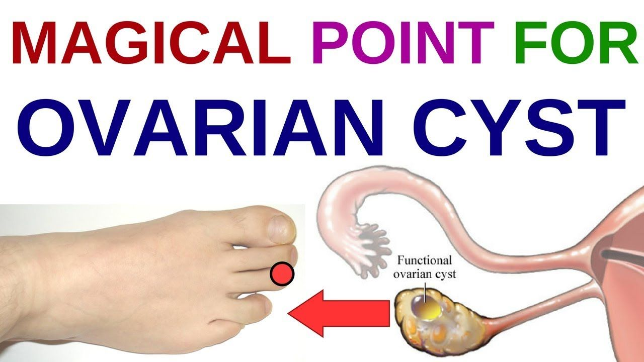 Acupressure Points For Pcos Acupressure Points For Ovary Cyst Acupressure Points For Ovarian Cysts Youtube Ovarian Cyst Cyst On Ovary Acupressure Points