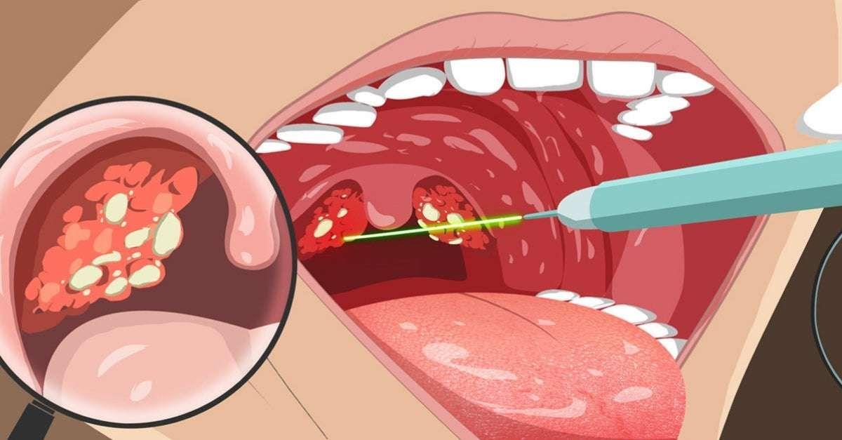 A amigdalite bacteriana é uma inflamação das amígdalas, que são estruturas  localizadas na garganta, causada por… em 2020 | Febre reumática,  Bacteriana, Bolinhas na garganta