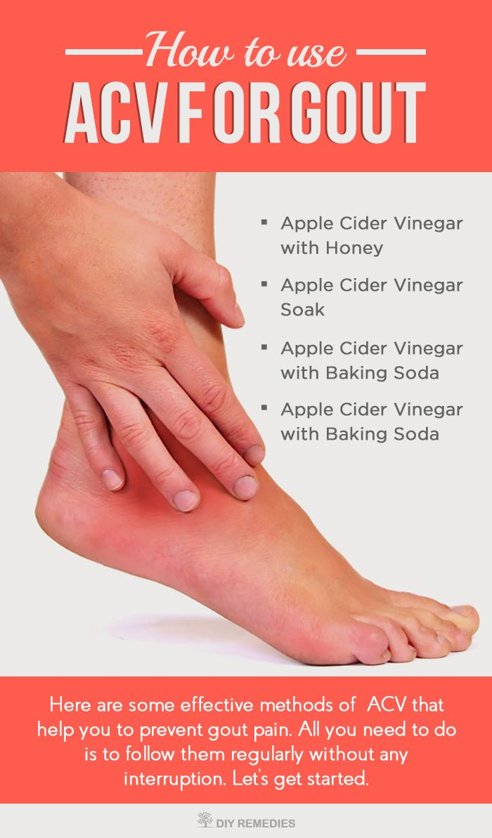 how to cure gout using apple cider vinegar: here are some effective