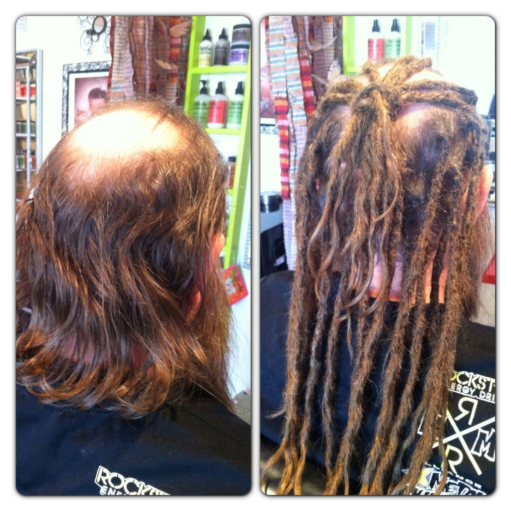 Before After Human Hair Dreadlock Extensions Dollylocks Human