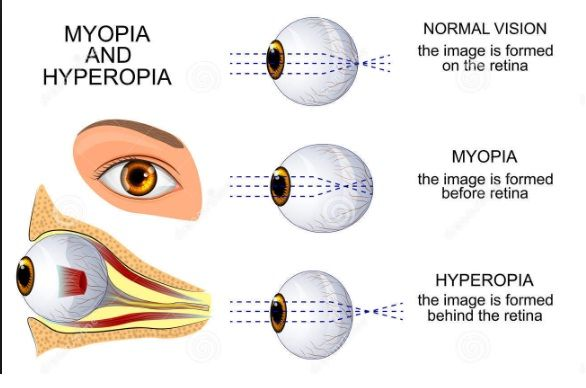 Myopia And Hypermetropia Long And Short Sightedness Many People Have Perfect Eyesight That Means They Don T Need Any Artific Mnemonics Presbyopia The Retina