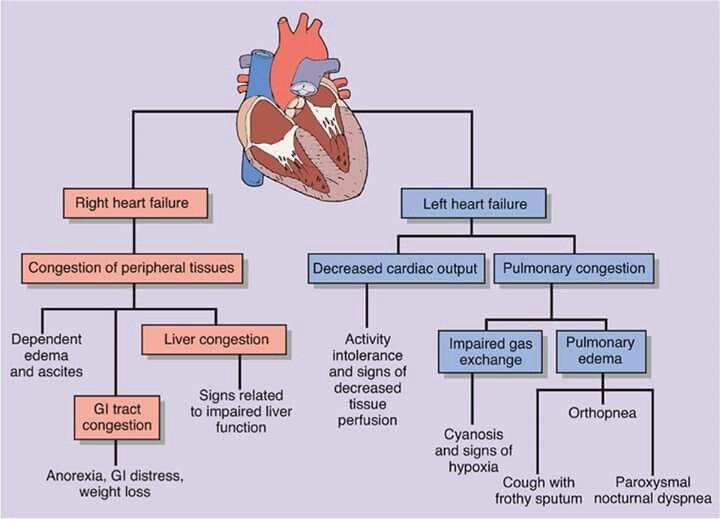 Pin By Nasr Ma On Medicine Pharmacy Heart Failure Nursing Heart Failure Cardiology Nursing