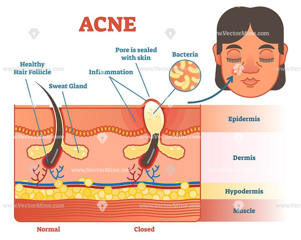 Acne Skin Layer Diagram Illustration