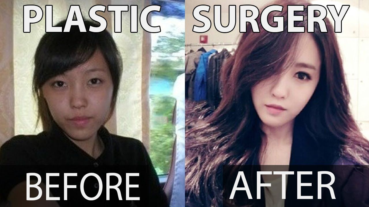 10 kpop stars before and after plastic surgery | misup | k-pop idols