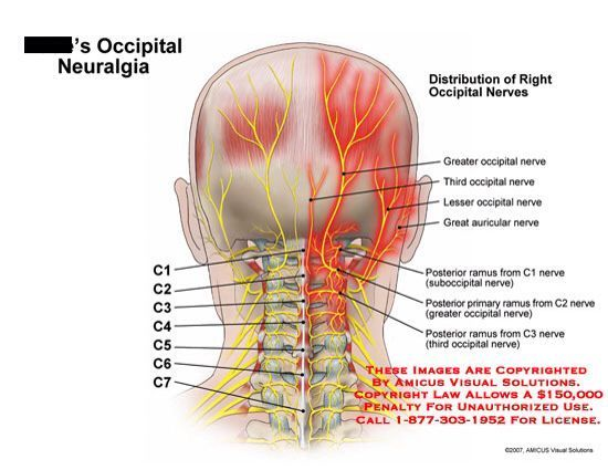 Occipital Neuralgiae Most Recent Diagnosis To Add To My List I