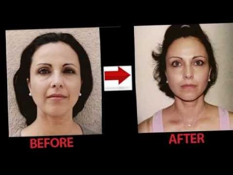Lose Face Fat Learn How To Lose Fat On Face Lose Fat In Face