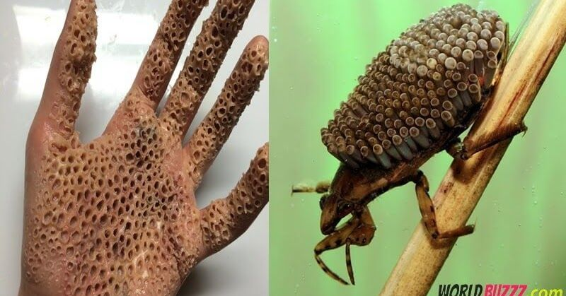 What Is Insect Trypophobia And Is It Real Trypophobia Insects