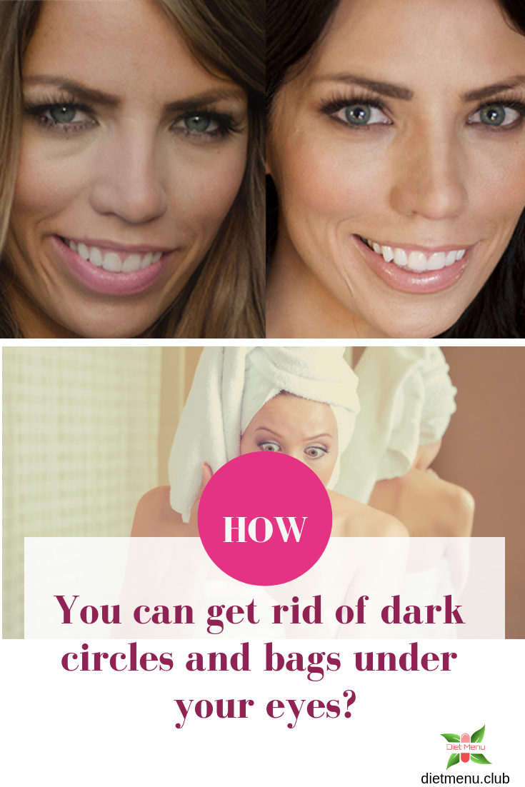 4ec75585485405c5fb739f9f0cfda538 - How To Get Rid Of Bags Under Eyes Naturally Fast