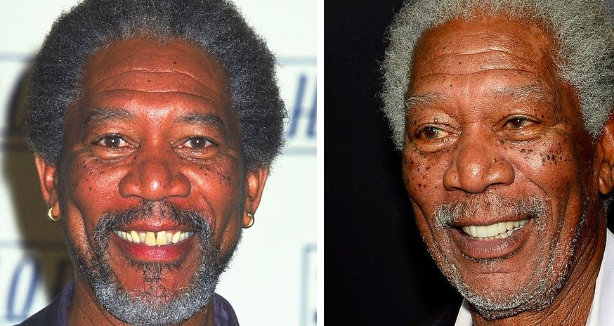 morgan freeman celebrity teeth makeover before and after   Работа in