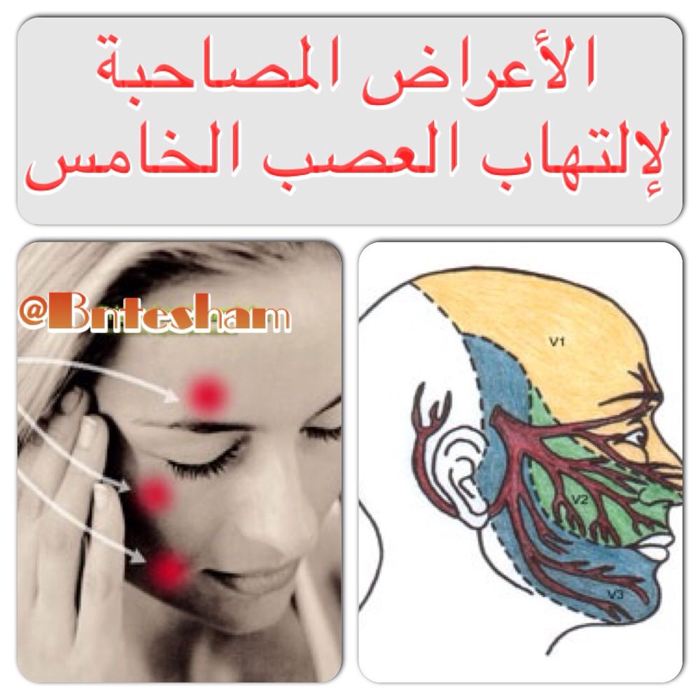 Http Instagram Com P Hmm2l I4ho Instagram Posts Nerve Diseases Instagram