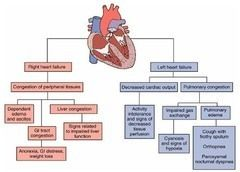 Left Sided Heart Failure Diagram | ideas | Pinterest | Best Left ...