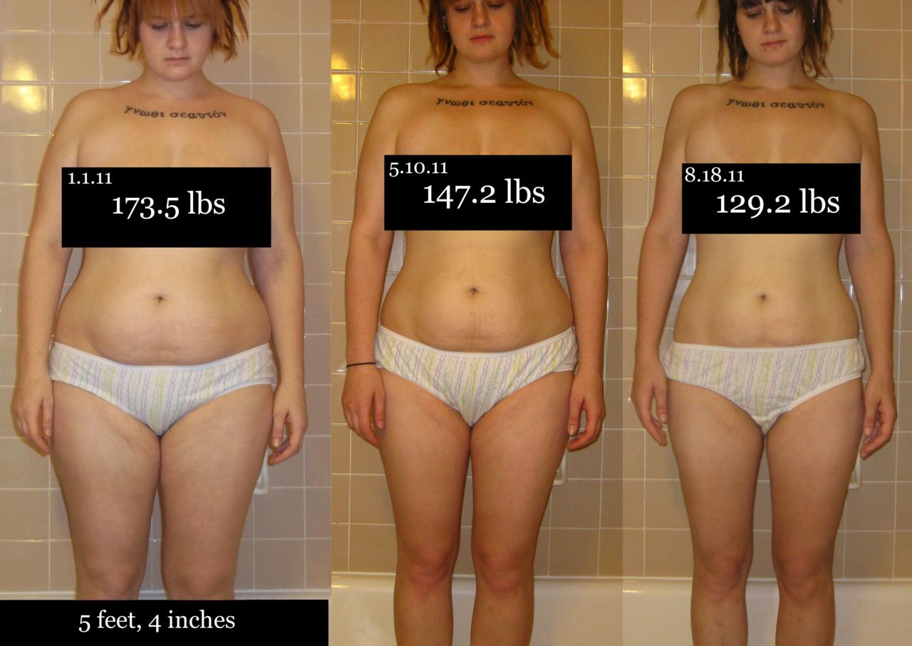 Which weight loss surgery is safer