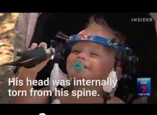 مصطفـــــــــــى محمـــــد تثبيت رأس طفل على عموده الفقرى Torn Blog Posts Blog