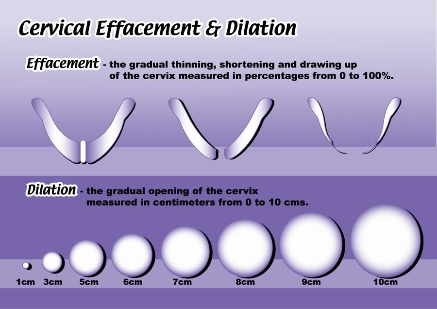 PIC/Diagram of dilation and cervical effecement