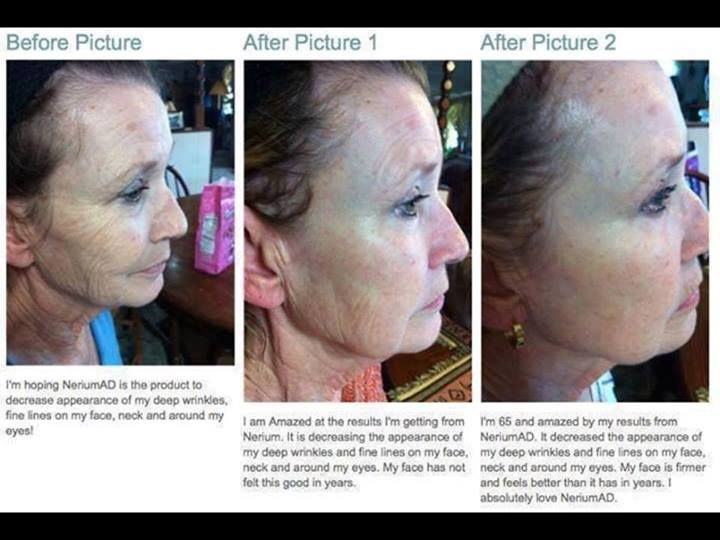 Wow, amazing results! If u want to try Nerium for yourself contact me. www.younglooks.nerium.com
