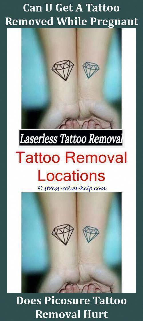 Tattoo Removal Service Can I Tattoo Over A Mole I Removed Can Tattoo Removal Mak