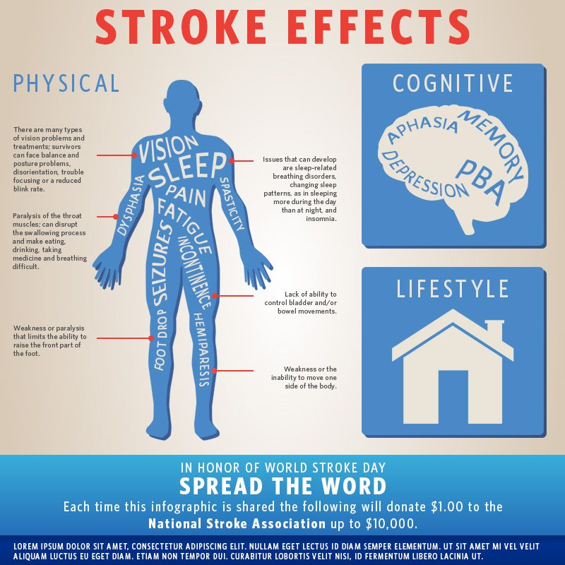 Pin On Stroke Infographics