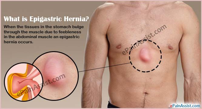 What is Epigastric Hernia | Stomach | Epigastric hernia