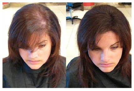 Treating hair loss best hair loss treatment for women hair before pursuing hair loss treatment for women talk with your doctor about the cause urmus Gallery