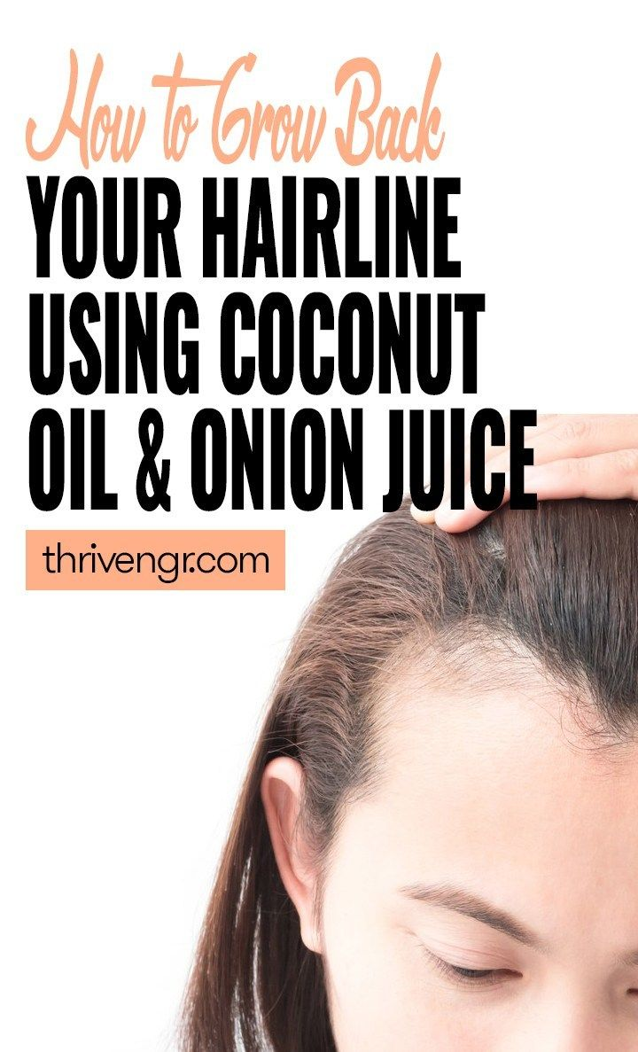 How to grow back your hairline using onion juice coconut