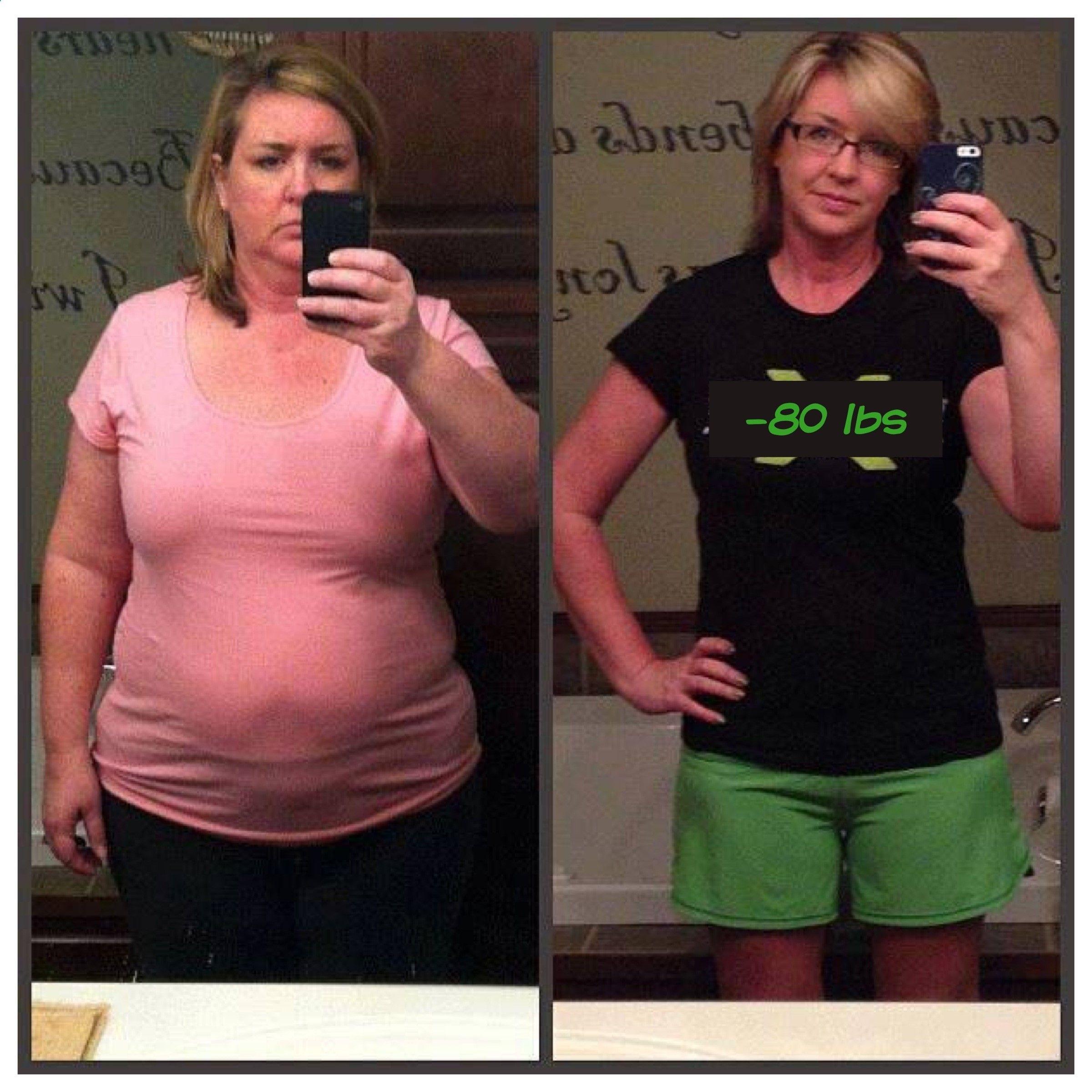 Lose chin fat without surgery photo 8