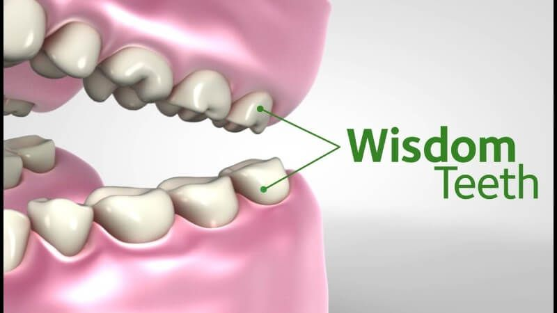 Everything you need to know about wisdom teeth and how to