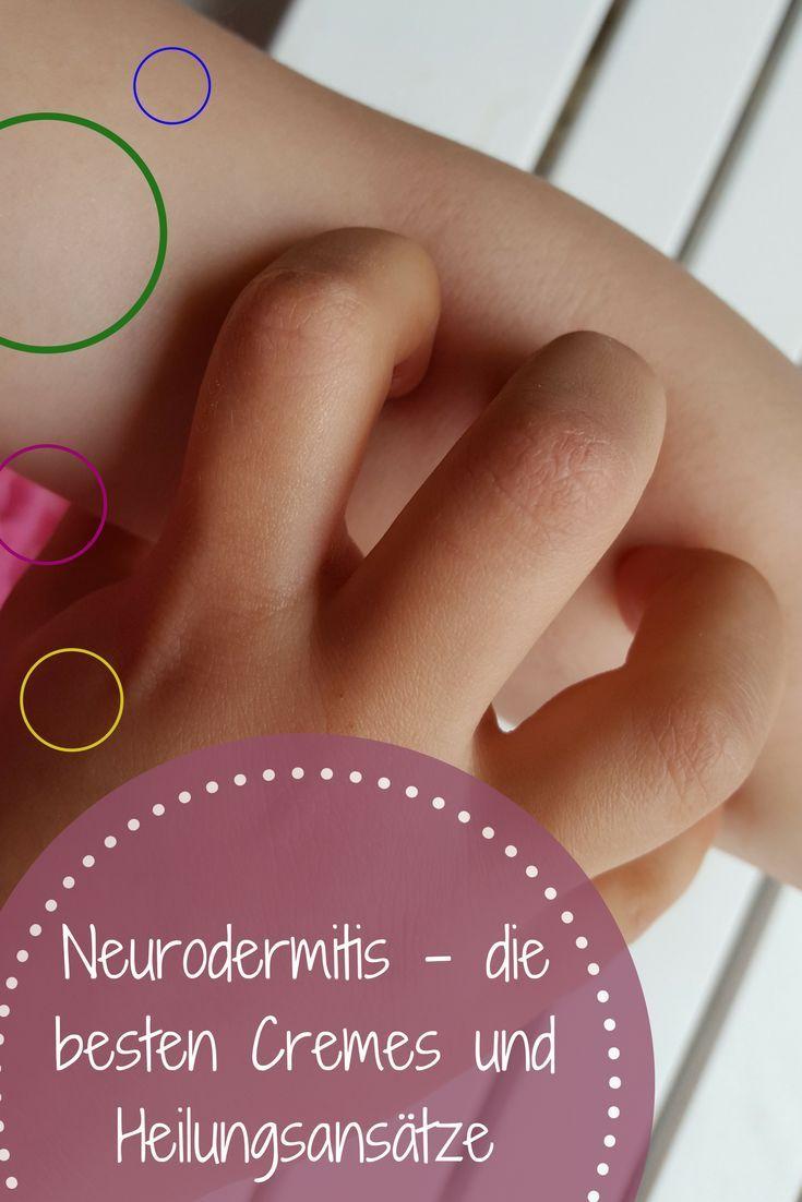Neurodermitis Die Besten Cremes Pflege Und Heilungsansatze