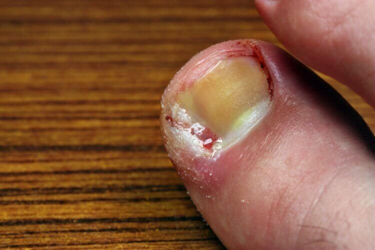remedios caseros para uñeros en los pies