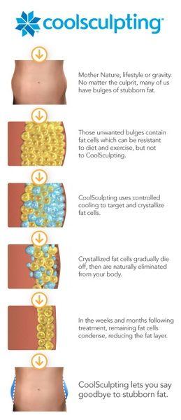 coolsculpting areas diagram