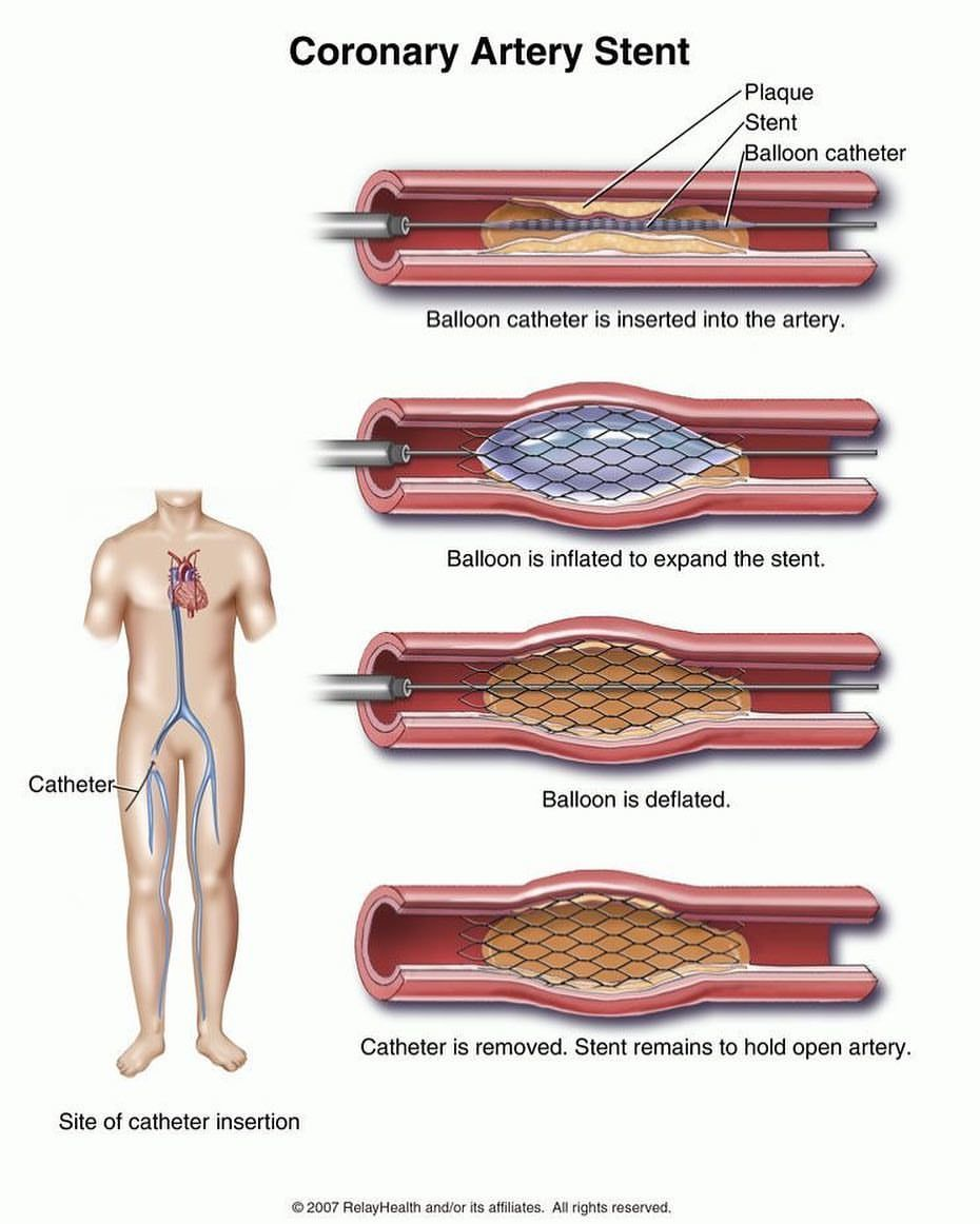 *CORONARY ARTERY STENT* . . A stent is a short, wire-mesh tube that acts like a scaffold to help keep your artery open. There are two main…