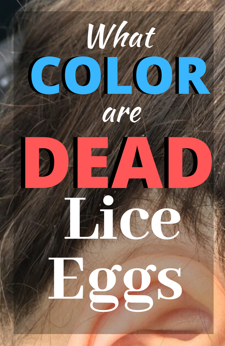 How To Get Rid Of Dead Lice Eggs From Hair