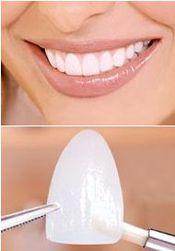 العدسات اللاصقة للأسنان تنسيق الاسنان سد الفرغات بين الاسنان ترميم كسر الاسنان تبييض وتجميل الاسنان Medical Beauty