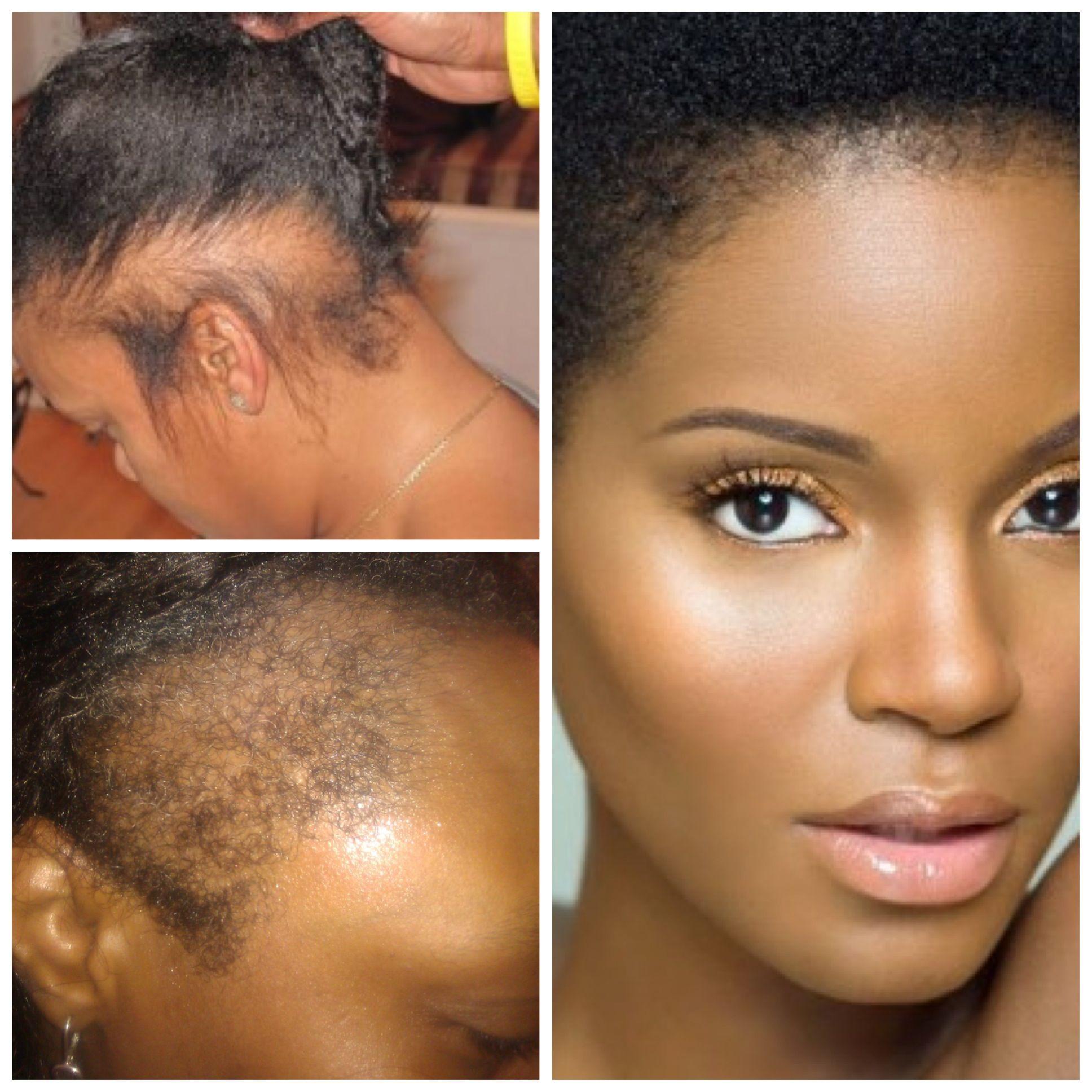 Repair A Damaged Hairline And Prevent Future Hair Loss With Nutresshair Natural Hair Styles Grow Hair Back Edges Hair