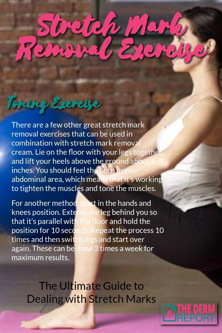 Stretch Mark Removal The Ultimate Guide to Dealing with Stretch