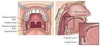 Pin by Kavita Jain on Visit here | Tonsil stones, Throat