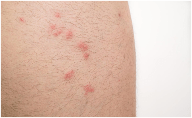 Pin by Judy Keenan on Health Bed bug bites, Allergic to