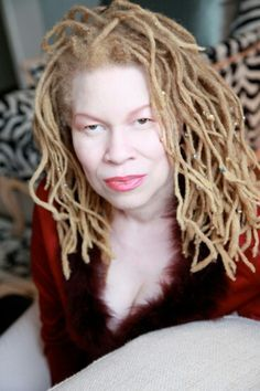 BEAUTY (Albinism) on Pinterest | Albinism, Albino Model and Albino ... |  Pale beauty, Beautiful hair, Natural hair styles