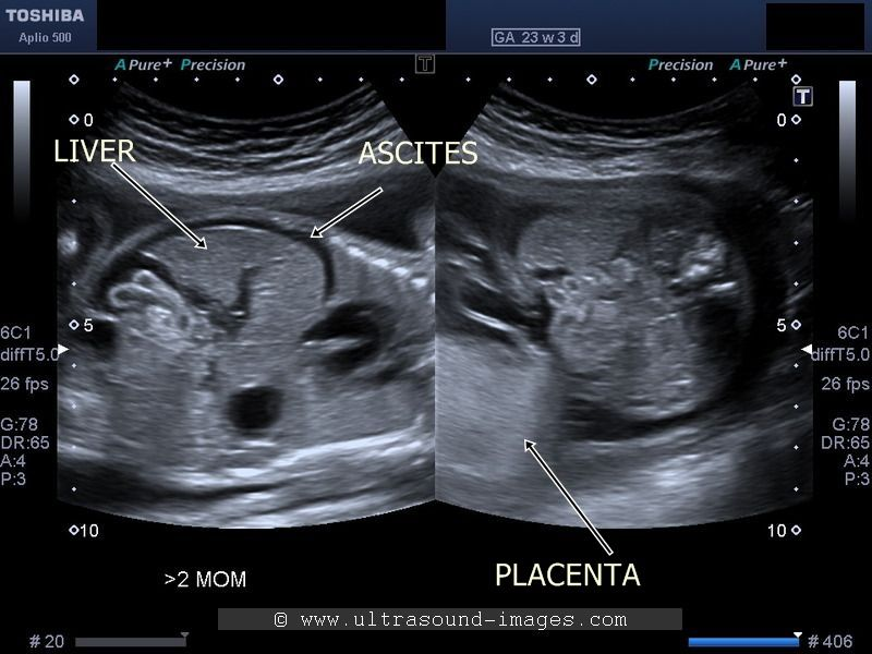 Ultrasound Image Of Fetal Anaemia Ultrasound Notes Pinterest